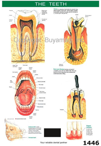 Dental Poster Teeth Structure & Root Canal Therapy Caries Disease