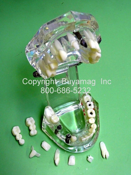 Upper & Lower Jaws Advanced Dental Work Restoration Combination 3 Implant 2 Bridges 7 Crowns Veneer In Lay Kit of 9 Parts Dental Implants Restoration Bridges Crowns Combo