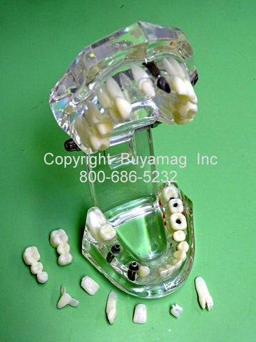 Upper & Lower Jaws Advanced Dental Work Restoration Combination 3 Implant 2 Bridges 7 Crowns Veneer In Lay Kit of 9 Parts