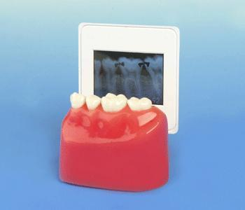 Why Dental X-Ray Is Necessary Patient Demonstration