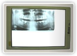 dental x-ray film viewer box