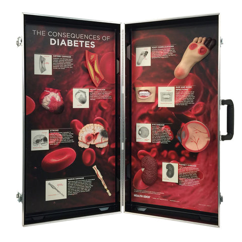 dabetes disease model display