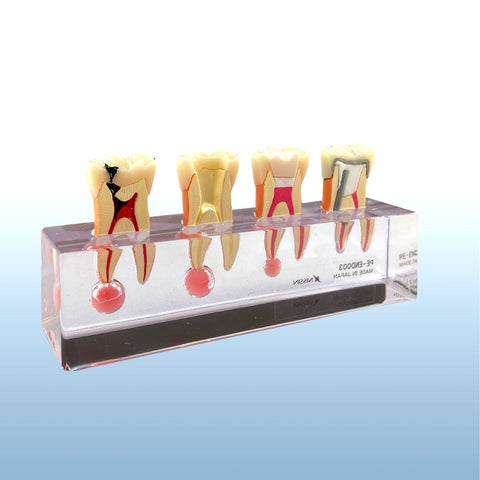 endodontic-sequence-molar-model