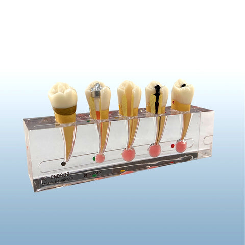 Endodontic treatment premolar sequence bicuspid tooth model