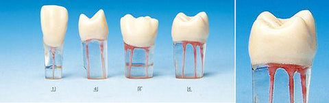 Endodontic Teeth & Transparent Root