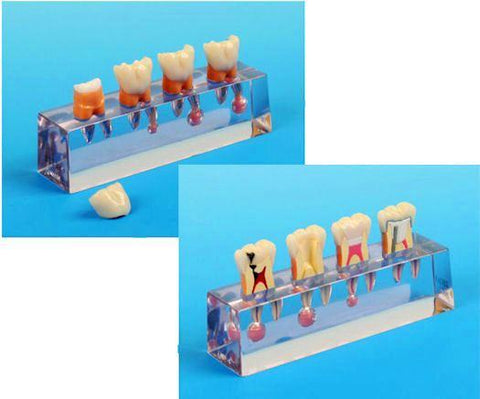 endodontic treatment model