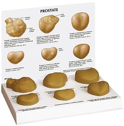 Prostate Pathologies Model