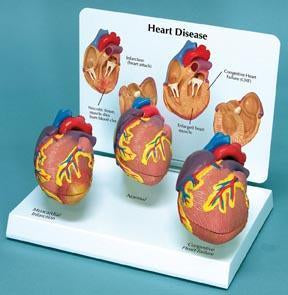 Heart Disease Model Normal Myocardial Infarction Congestive Heart Failure