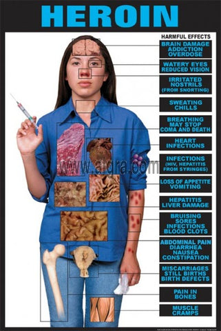 Harmful Drug Effects of Heroin Poster Chart