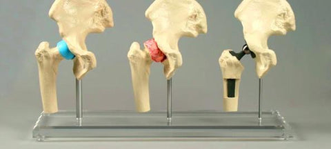 Hip Joint Degeneration Replacement Combo Model