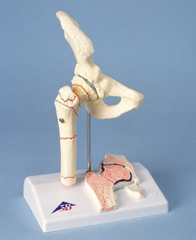 Hip Joint Model Fractured Femoral & Hip Osteoarthritis