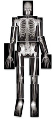 human bone skeleton x-ray images