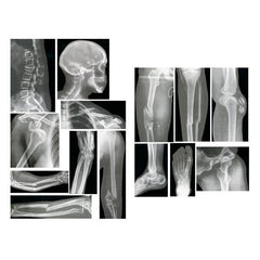 Human Broken Bones X-Ray Images Photos 15 Set