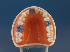 Hygiene Periodontal Assisting Model calibration caries detection