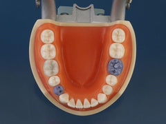 Dental Hygiene Periodontal Assisting Model calibration caries detection