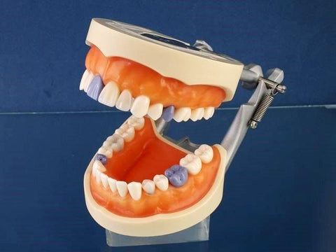 Hygiene Periodontal Model calibration caries detection