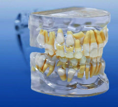 orthodontic model impacted cuspid tooth