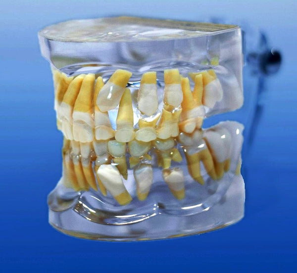 impacted cuspid tooth model
