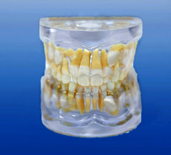 impacted cuspid tooth orthodontic model
