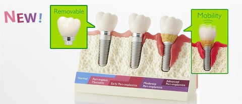 Dental Implants Periodontal Gum Disease Moderate & Advanced Stages Model
