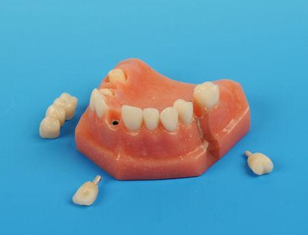 dental implant bridge model