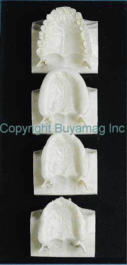 Dental Edentulous  Maxillary  Series 4 parts