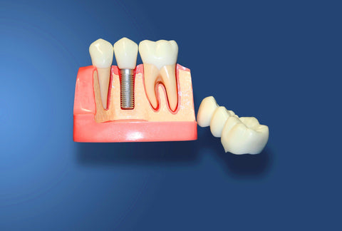 Dental Implants 3 Units Bridge 2 Crowns Reconstruction