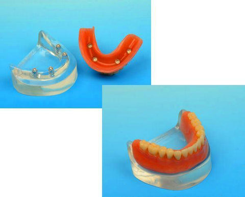 Dental 4 Implants Locator