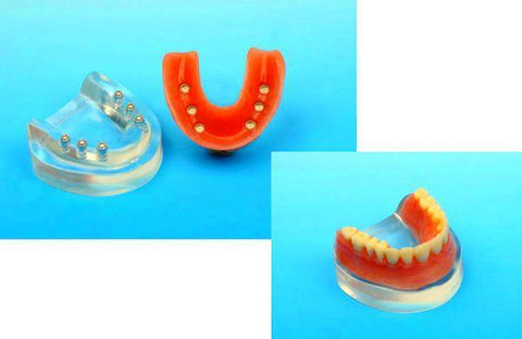 Locator Model Over Denture