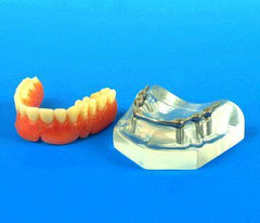 6 Implants Maxillary 5 Clips Dental Model