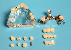 crown bridge dental restoration model