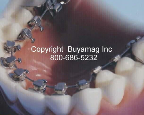 Lingual Orthodontic Model With Lingual Brackets Gold Series