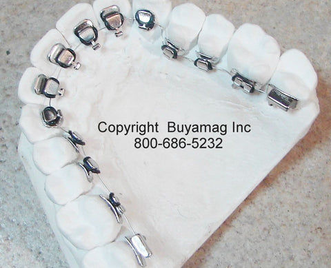 Lingual Orthodontic Model With Lingual Brackets Silver Series