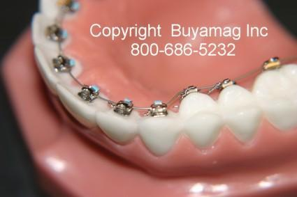 Lingual Orthodontic Model With STB Mini Lingual Brackets