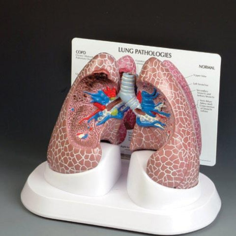 Lungs Pathologies Full-Size 2- Sided Model