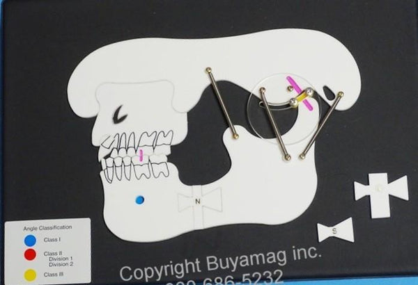 Dental Orthodontic Malocclusion Model Demonstration Board