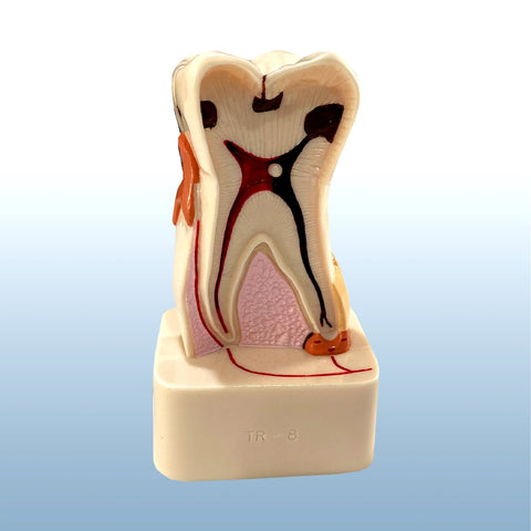 Dental Molar Tooth Pathology Model Dental Education Teaching Study Dentistry
