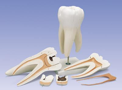 Three Root Molar With Dental Caries 6 Part, Giant Model