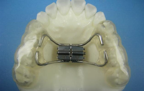 Bonded Rapid Palatal Expander Orthodontic Model