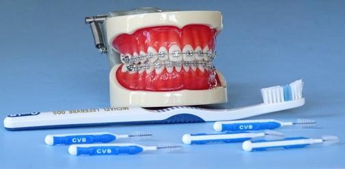 Orthodontic Model Tooth Brushing & Braces Wire