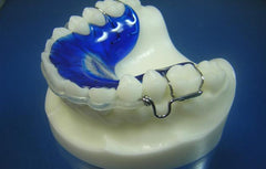 ClearBow SLB Orthodontic Model