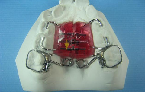 T-Rex Distalizer Orthodontic Model