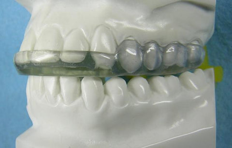 Goldilocks Splint Orthodontic Model