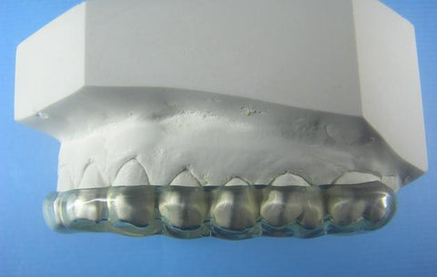 All Hard Splints Orthodontic Model