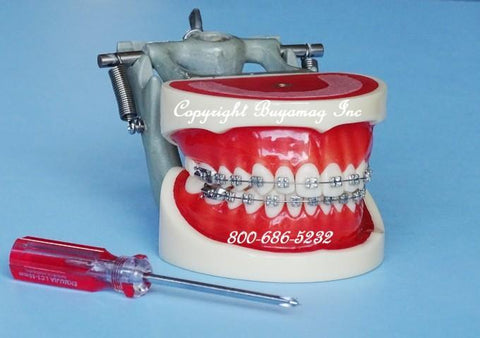 orthodontic model