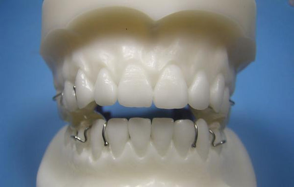 Twin Block Orthodontic Model