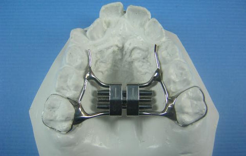 Standard Rapid Palatal Expander Orthodontic Model