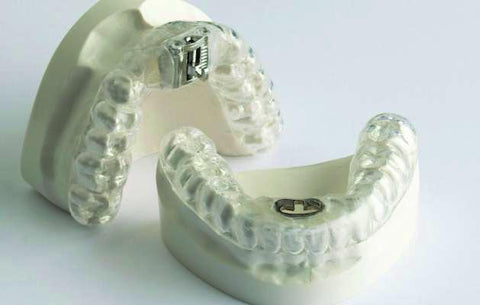 Snoring, Sleep Apnea Retainers Orthodontic Model TAP
