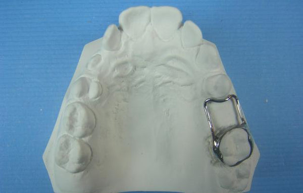 Space Maintainer Orthodontic Model