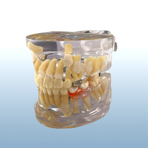 orthodontic space maintenance model